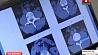 В Гомеле смогут моделировать операции на позвоночнике У Гомелі змогуць мадэляваць аперацыі на пазваночніку Software to simulate spinal surgery being developed in Gomel