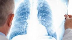 В Вене провели первую в Европе пересадку легких больному COVID-19